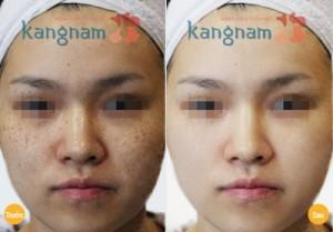 Trị tàn nhang trên mặt chỉ sau 1 lần duy nhất