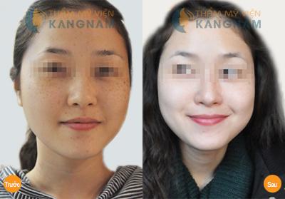 Cách chữa da mặt bị tàn nhang - Kinh nghiệm của mẹ bé Bi 1