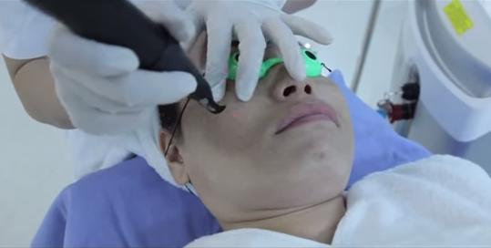 Sau điều trị tàn nhang bằng Laser Toning da có bị mỏng và bắt nắng không?2