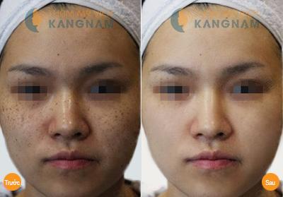 Khám phá cách làm mờ tàn nhang trên mặt với thế hệ tia laser màu mới 5