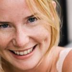 Làm thế nào để trị hết tàn nhang trên mặt một cách nhanh nhất?