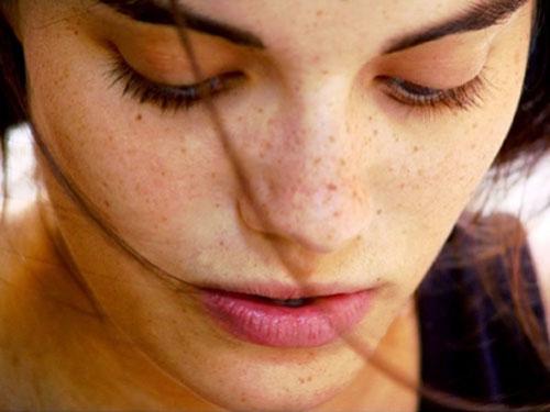 Trị nám da và tàn nhang thế nào cho hiệu quả? 1
