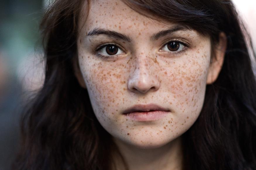 Trị nám da và tàn nhang thế nào cho hiệu quả? 4