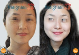tri-tan-nhang-tai-Kangnam-co-het-vinh-vien-duoc-khong2