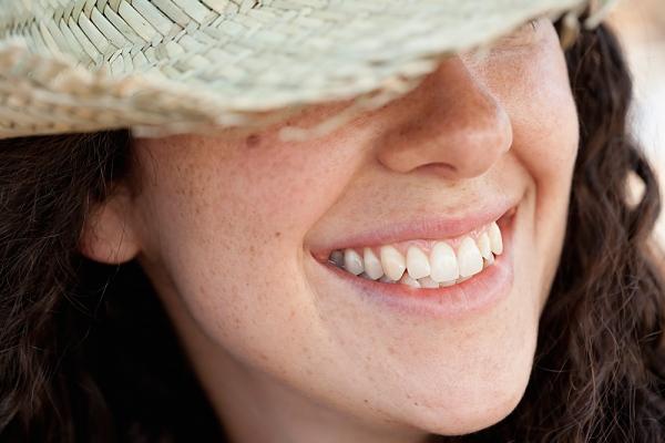 Mách quý cô mẹo chữa tàn nhang trên mặt với gạo tẻ 1
