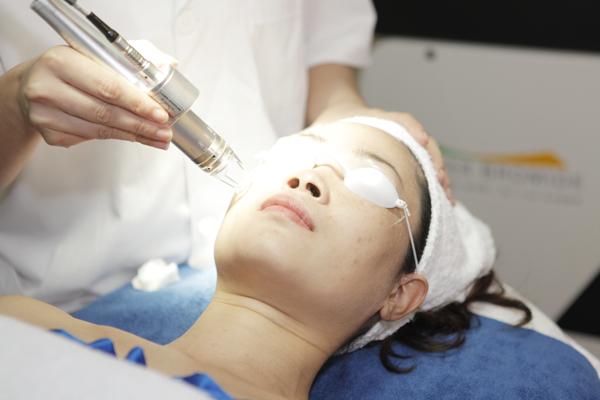 Điều trị tàn nhang bằng laser – những vấn đề chị em nên biết 2