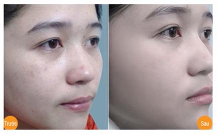 Laser Toning – Bí quyết trị nám, tàn nhang của hàng ngàn phụ nữ Việt 10
