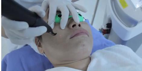 Trị tàn nhang Laser Toning – Sự lựa chọn thông minh cho phụ nữ 7