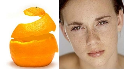 Cách trị tàn nhang bằng vỏ cam hiệu quả