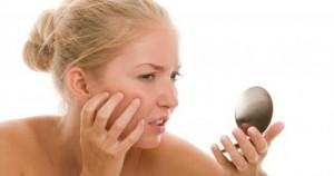 4 lưu ý khi trị tàn nhang tại nhà không nên bỏ qua