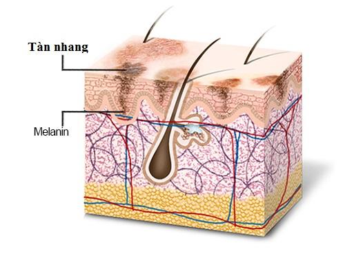 Phải làm gì khi xuất hiện tàn nhang ở lưng?2