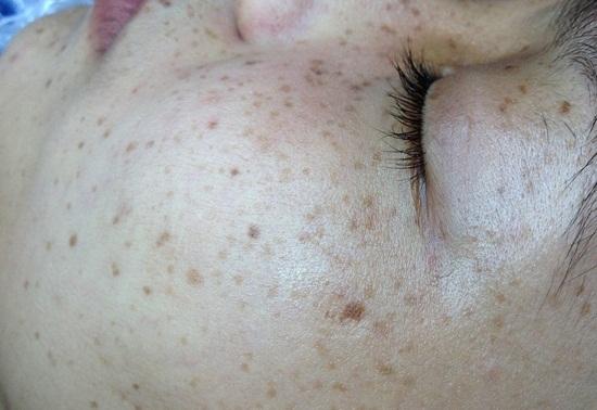 Phụ nữ sau sinh – Nỗi lo tàn nhang làm giảm nhan sắc 0