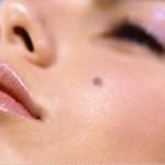 Tàn nhang và nốt ruồi khác nhau như thế nào? – Giải đáp