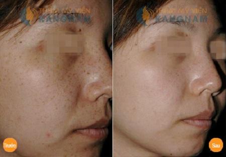 Điều trị tàn nhang trên mặt 1 lần cho kết quả vĩnh viễn333