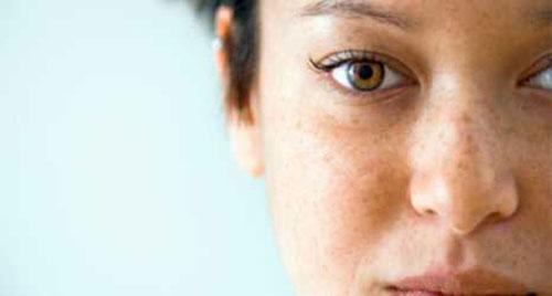 Điều trị tàn nhang trên mặt 1 lần cho kết quả vĩnh viễn