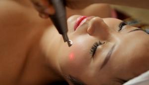 3 phương pháp làm mờ tàn nhang trên mặt bạn nên cân nhắc