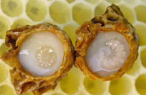 Khám phá công dụng tuyệt vời của sữa ong chúa trong điều trị tàn nhang 2