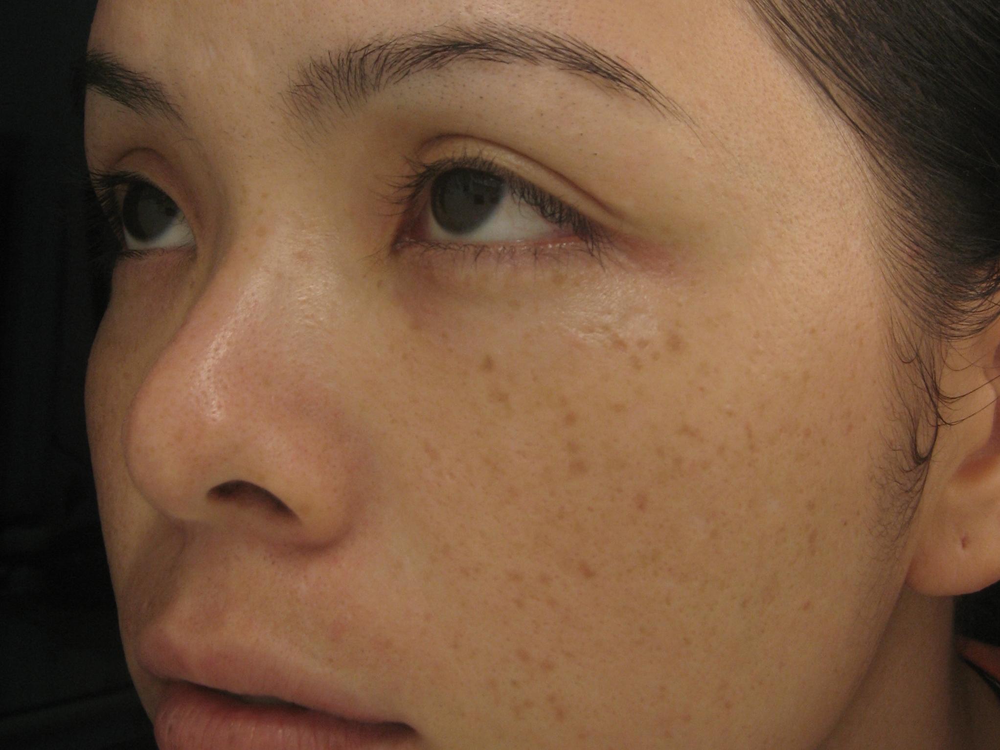 Những lưu ý khi điều trị tàn nhang trên mặt bạn cần biết1