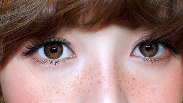Bác sĩ tư vấn: Cách làm mất tàn nhang trên mặt không để lại sẹo1