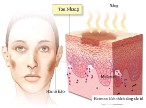 Năng lượng Laser Toning chữa bệnh tàn nhang tận gốc, không tái phát