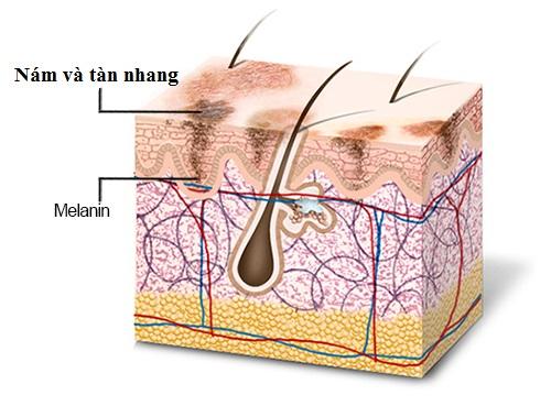 4 lý do để bạn lựa chọn trị nám tàn nhang bằng CN Laser Toning3