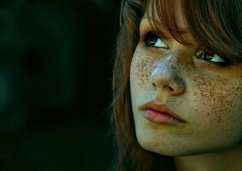 Học lỏm 5 cách trị tàn nhang đơn giản1