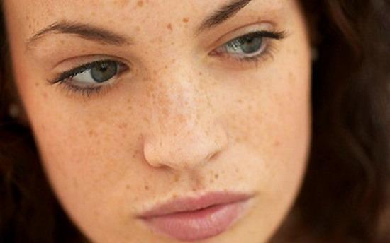 Khám phá cách chữa tàn nhang trên mặt chỉ với 1 lần duy nhất