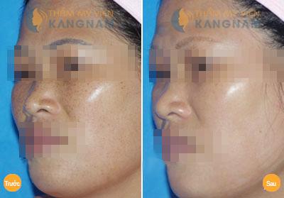 Khám phá cách chữa tàn nhang trên mặt chỉ với 1 lần duy nhất5
