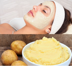 Mẹo trị tàn nhang bằng khoai tây có hiệu quả không?