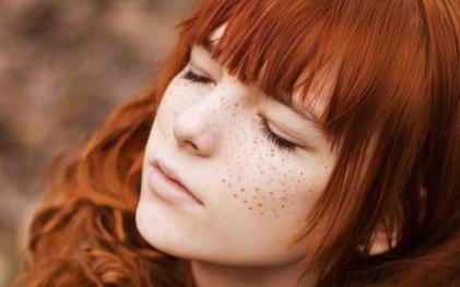 5 mẹo chữa tàn nhang trên mặt tại nhà từ thiên nhiên