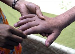 Đâu là cách trị tàn nhang ở tay không tái phát?