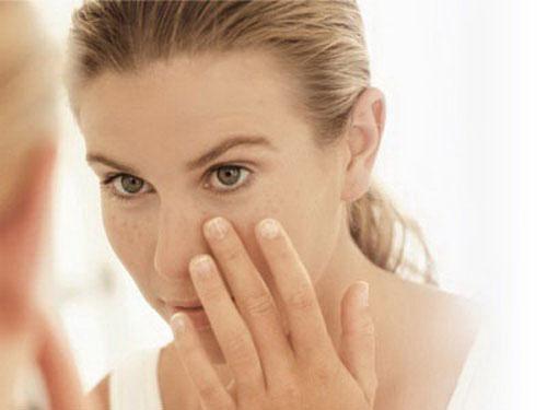 Kem trị tàn nhang dùng không đúng nguy cơ hỏng da 3