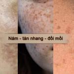 Cách trị đồi mồi bằng dầu dừa trên da mặt hiệu quả – Bạn đã thử chưa?