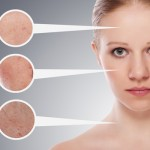 Tàn nhang có phải dấu hiệu của bệnh ung thư da?