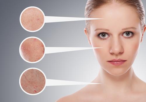 tàn nhang có phải dấu hiệu của ung thư da