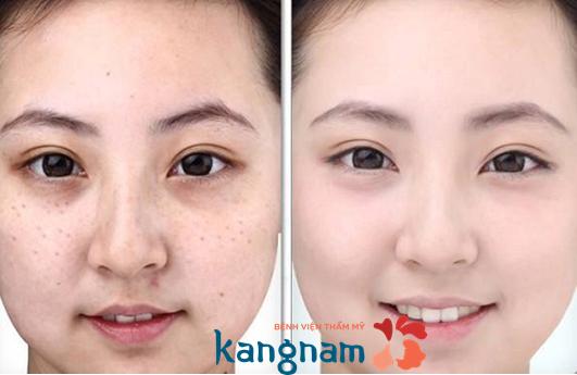 Hình ảnh khách hàng sau khi trị tàn nhang tại Kangnam