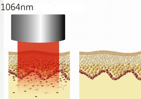 Cơ chế hoạt động của công nghệ laser toning