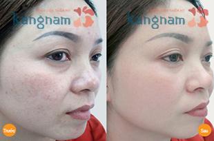 Hình ảnh trước và sau khi trị tàn nhang
