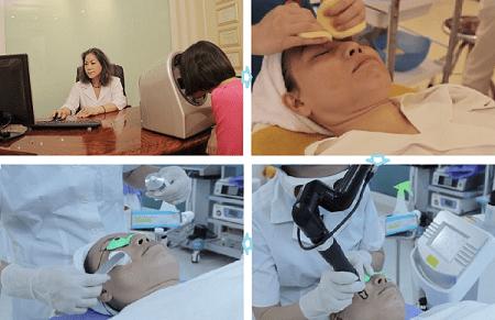 quy trình điều trị tàn nhang bằng laser toning