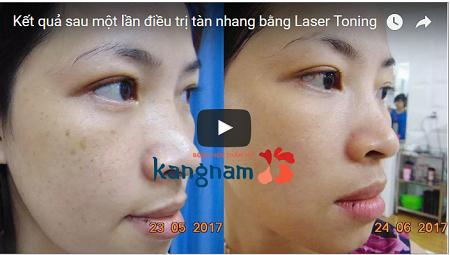 Chi phí điều trị tàn nhang bằng Laser Toning tại Kangnam