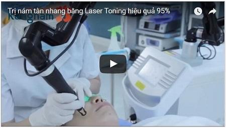 video trị tàn nhang tận gốc bằng laser toning