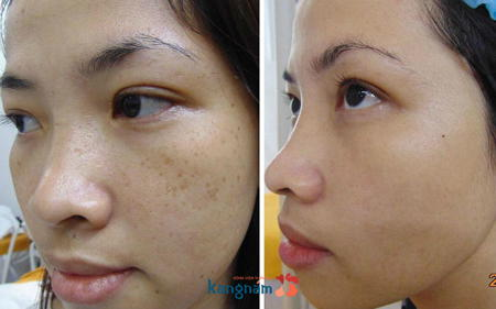 Hình ảnh so sánh trước và sau khi điều trị của khách hàng1