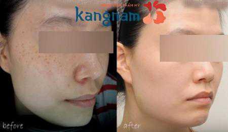 Chi phí điều trị tàn nhang bằng Laser là bao nhiêu tại Kangnam