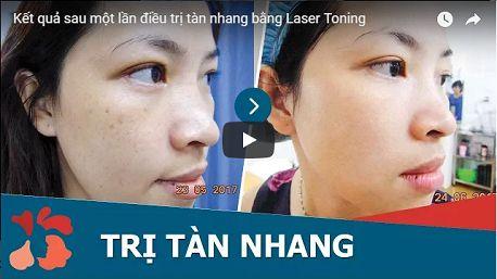 Đánh bay mọi vết tàn nhang vĩnh viễn bằng Laser Toning7
